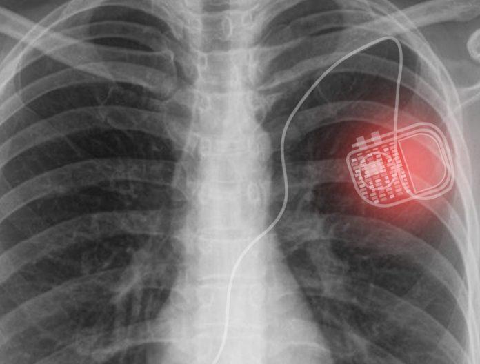Беспроводная светодиодная система Micro для питания медицинских имплантатов