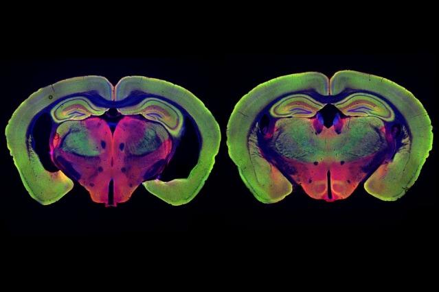 <pre>Новое исследование MIT объясняет, как воздействие мерцающего света может вылечить болезнь Альцгеймера